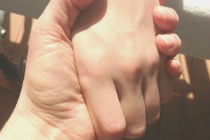 handen burnout klein